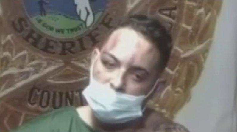Kubański reggaeton aresztowany za uderzenie wozu strażackiego pałką - Telemundo Miami (51)